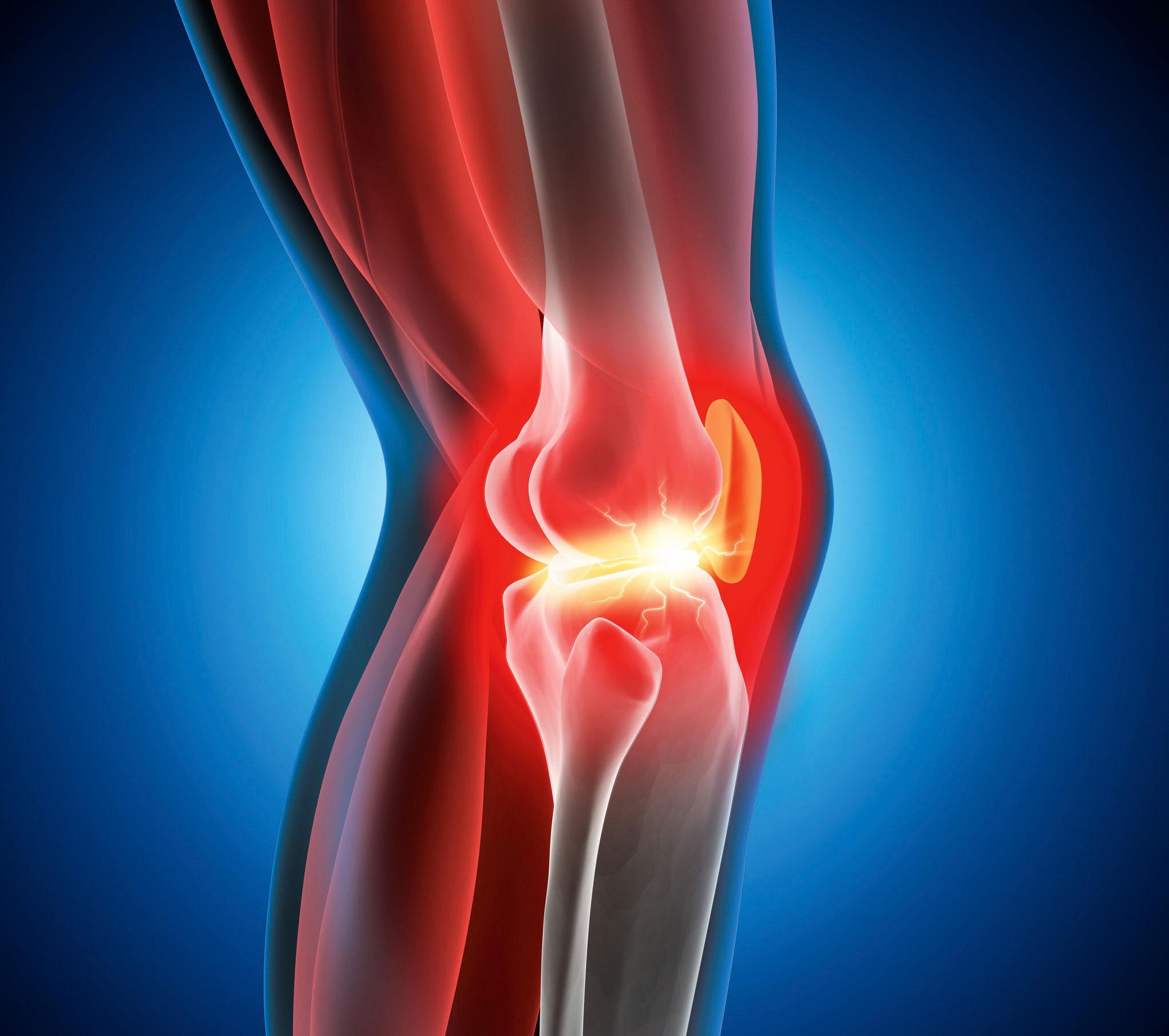 Analiza systemowa – codzienne bóle kolan
